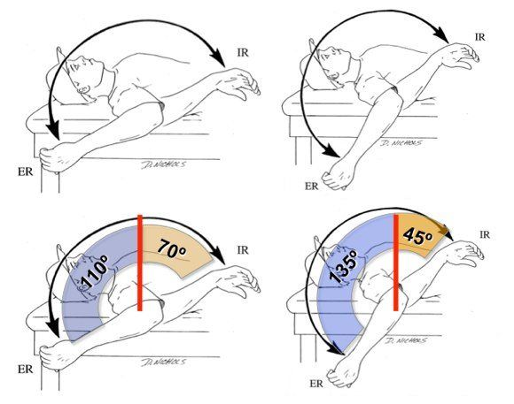 GIRD-glenohumeral-internal-rotation-deficit